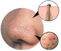 Simple home remedy to get rid of blackheads